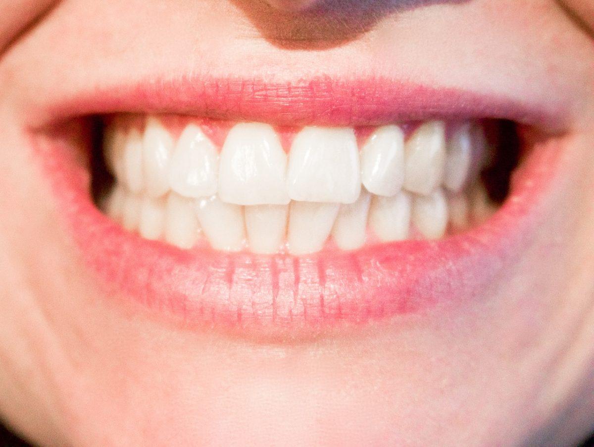 Obecna technika stosowana w salonach stomatologii estetycznej zdoła sprawić, że odbierzemy piękny uśmieszek.